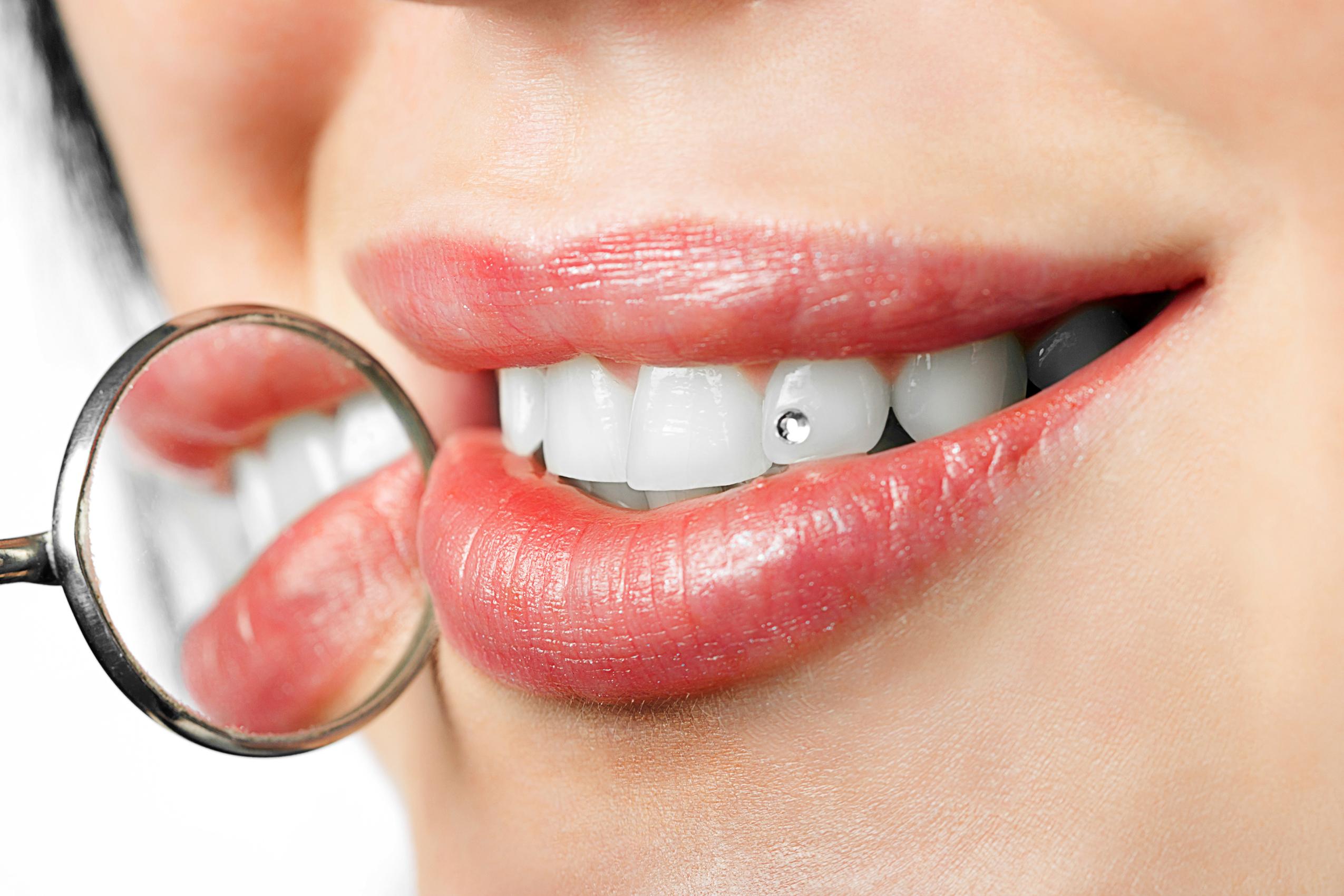 Bijoux-dentaires-